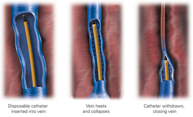 varicose veins management